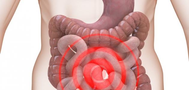 صورة اعراض القولون الهضمي بالتفصيل , كيف تعرف انك مريض بالقولون