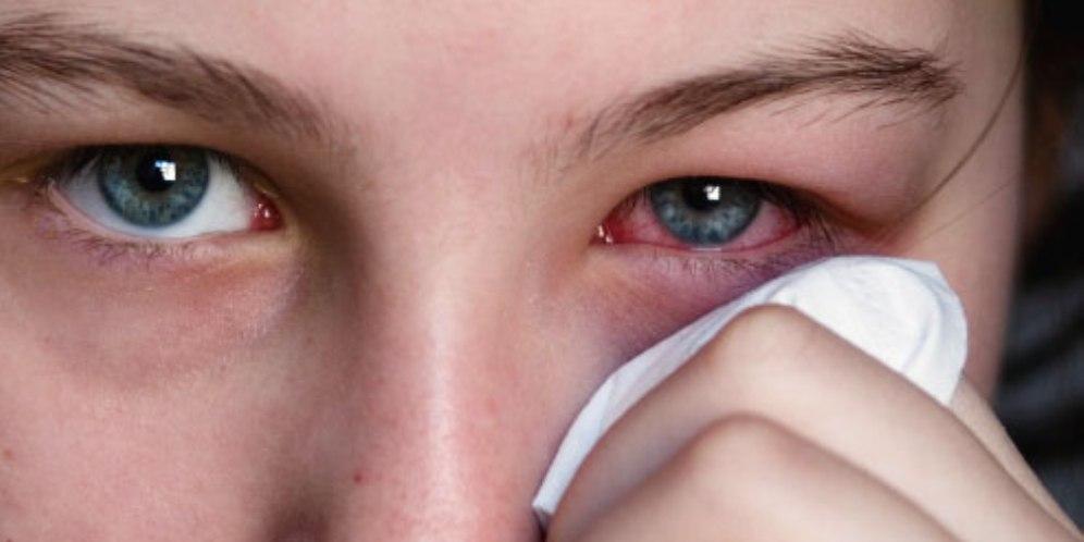 صورة اسباب حساسية العين , عادات يوميه تسبب لك مشاكل النظر