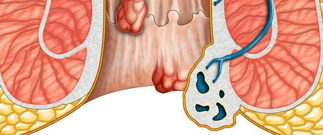 صورة دواء لعلاج البواسير , وصفات طبيعية للتخلص من انتفاخ الاوعية الدموية