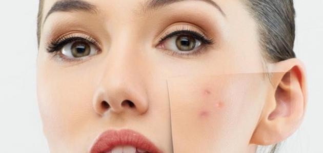 صورة لعلاج حبوب الوجه , اتخلصى من الحبوب نهائيا