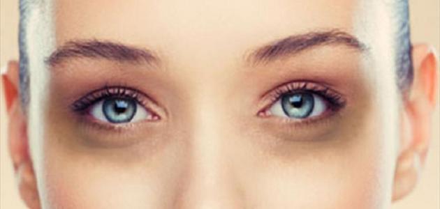 صورة علاج هالات العين , التخلص من السواد حول العين نهاااائيا