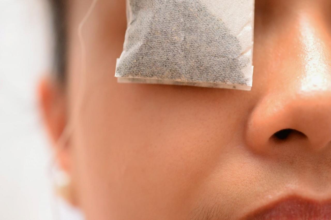 صورة علاج جفاف العين بالاعشاب , التخلص من جفاف العين بالطب البديل