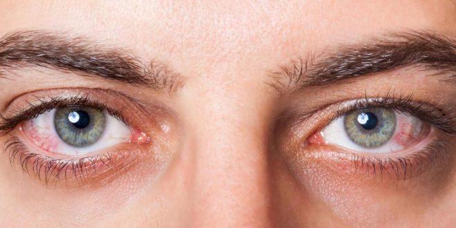 صور علاج جفاف العين بالاعشاب , التخلص من جفاف العين بالطب البديل