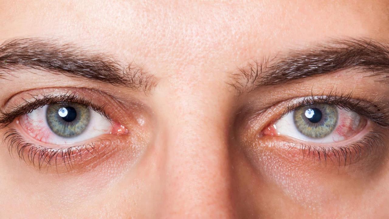 علاج جفاف العين بالاعشاب التخلص من جفاف العين بالطب البديل غرور وكبرياء