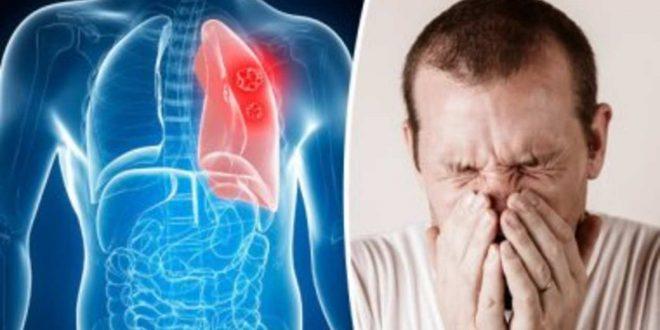 صور اعراض سرطان الرئة , ازاى تعرف انك مصاب بسرطان الرئه