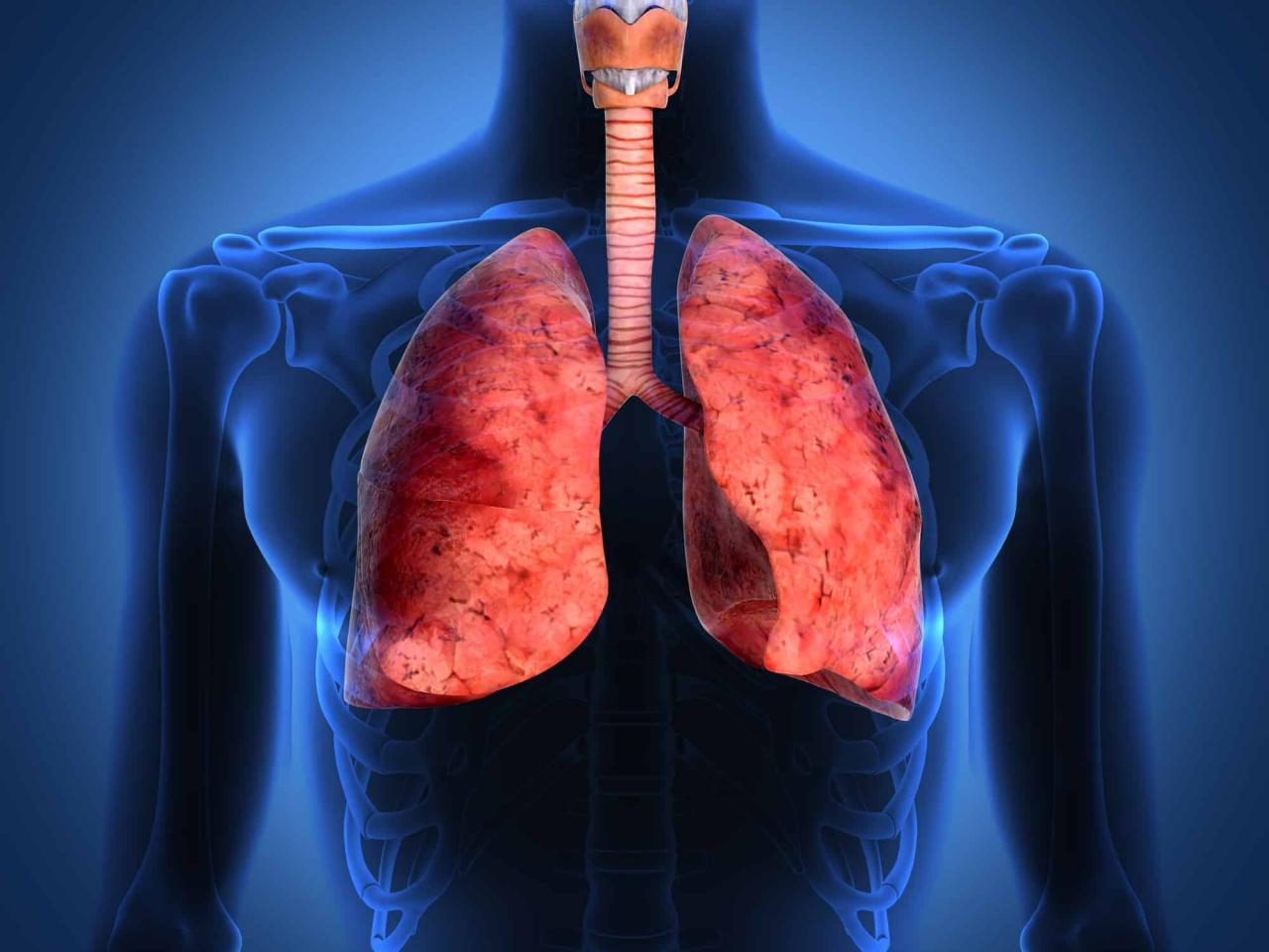 صورة اعراض سرطان الرئة , ازاى تعرف انك مصاب بسرطان الرئه