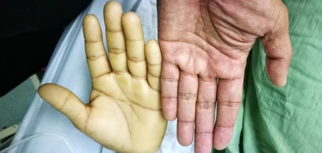 صورة فقر الدم واعراضه , موضوع عن فقر الدم