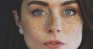 صور اسباب النمش في الوجه , اسباب النمش والعلاج الطبيعي له