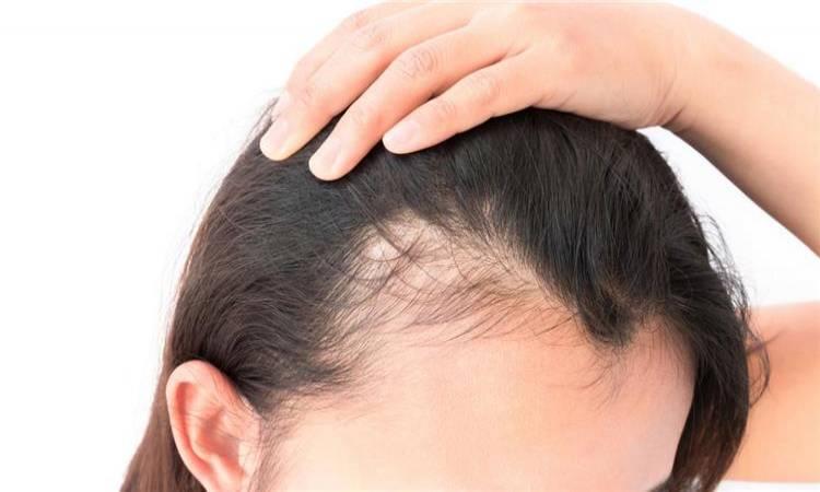 صورة علاج قرع الشعر , وصفات طبيعيه لعلاج الصلع