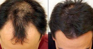 صور علاج قرع الشعر , وصفات طبيعيه لعلاج الصلع