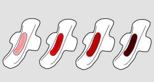 صورة اسباب نزول دم اسود من المهبل , علامات الخلل الهرموني للبنات