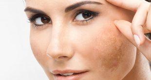 صورة علاج كلف الوجه , احصلي علي وجه منور ونظيف