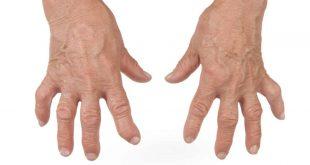 صورة اعراض مرض الروماتويد , تفاصيل عن مرض الروماتويد وخطورته