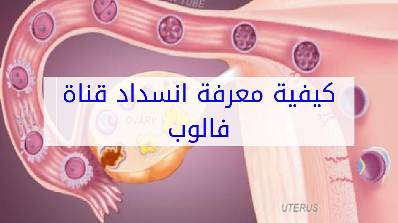 صورة اعراض انسداد قناة فالوب , علاقة قناة فالوب بالدورة الشهرية