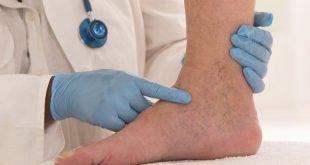 صورة علاج ضعف الشعيرات الدموية فى الساق , طريقة للتخلص من الشعيرات الدموية في الساق للابد