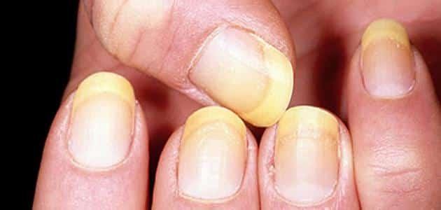 صورة علاج فطريات الاظافر بالاعشاب , الحل النهائي والسريع لمن يعاني من فطريات الاظافر