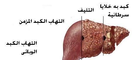 صورة اعراض فيروس الكبد c , تعرفي علي مرض فيروس سي