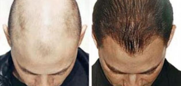 صورة علاج الصلع عند الرجال , وصفات للتخلص من تساقط الشعر