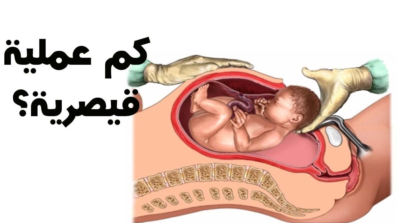 صورة  , كم عملية قيصرية يتحمل الرحم الحد الاقصي للولادة القيصيريه ومخاطر الافراط فيها