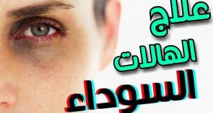 صورة علاج الهالات السوداء تحت العين عند الرجال , تعرف علي اقبح عيب في عيوب البشره وطرق علاجها نهائيا