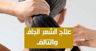 صورة علاج الشعر الجاف , احصلي علي شعر ناعم 5952 3 310x165