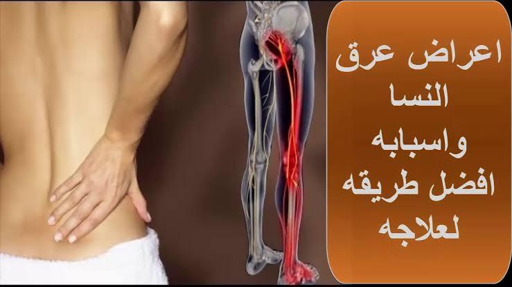 صورة اعراض وعلاج عرق النسا , تعب اول عصب في جسم الانسان