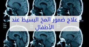 صورة اسباب ضمور المخ , يحدث لبعض الاطفال