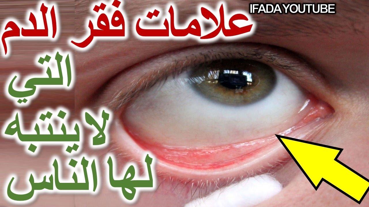 صورة اعراض الانيميا الخبيثة , فقرالدم هل خطر