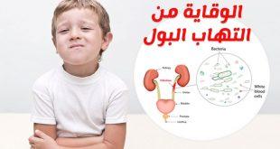 صورة علاج حرقان البول عند الاطفال , تحدث لدي الكثير الاطفال
