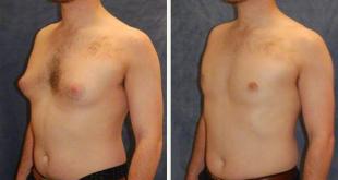 صورة تمارين تخسيس الصدر للرجال , كيفية شد صدر الرجال بالتمارين