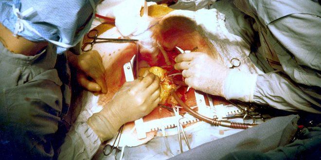 صورة عملية قلب مفتوح كاملة , من اخطر العمليات