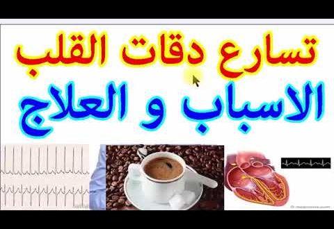 صورة علاج ضربات القلب السريعة, ما هو سبب خفقان القلب