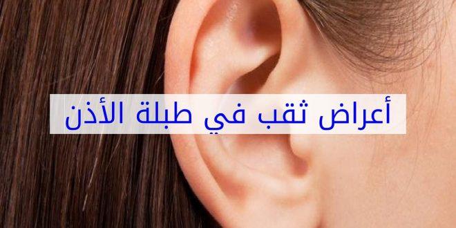 صورة اعراض ثقب الاذن, ربما يكون هذا هو السبب وراء امراض الاذن