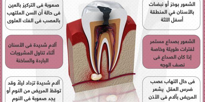 صورة اعراض عصب الاسنان, اذا شعرت بهذه المشاكل فانت اكيد تعاني من عصب الاسنان