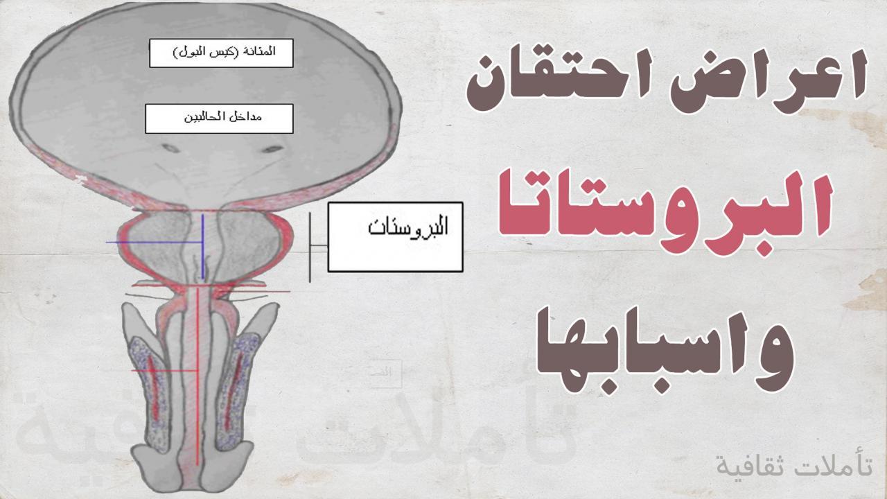 صورة اعراض تضخم البروستاتا عند الشباب , العلاقة بين البروستاتا واحتباس البول فى المثانة