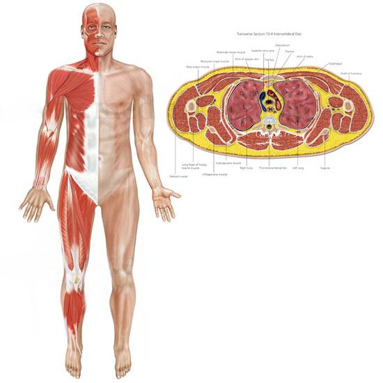 صورة ما هو مرض الفالج , اعراض و اسباب مرض فالج