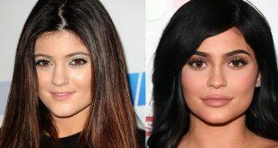 صورة قبل وبعد التجميل , بالصور اشخاص قبل وبعد التجميل